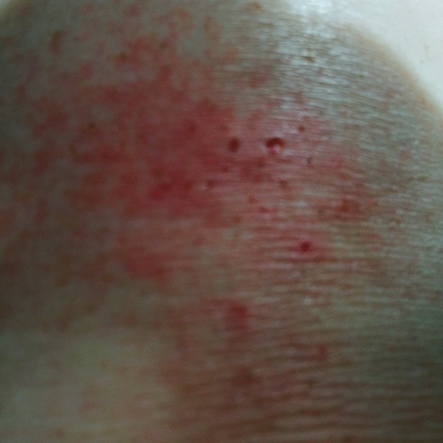 Just accidentally knelt on some oven cleaner and now my knee looks like this...#thatsnotgoodright?